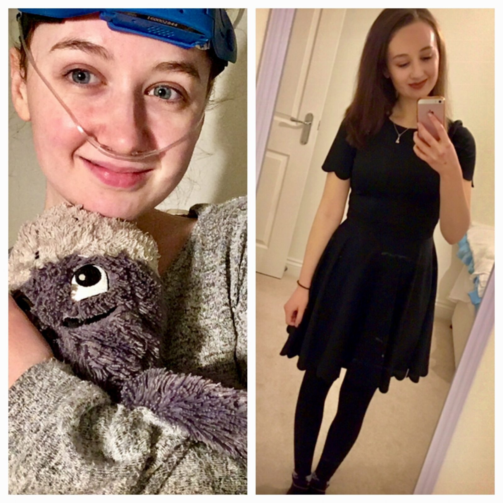 two images of pippa. left image features pippa in pyjamas, holding soft toy, with nose cannula and headgear, right image featuring nice dress and hair and make-up done for going out